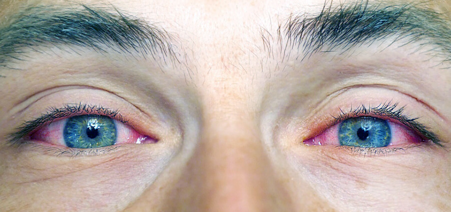 سرخ شدن چشم از علایم مصرف ماری جوانا