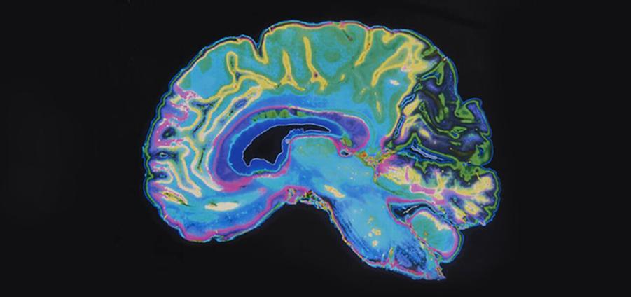 بهترین کلینیک اعصاب و روان
